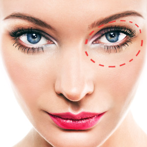 Facial Plastic Surgery (Blepharoplasty)